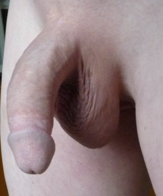 Infection uncircumcised living penis young
