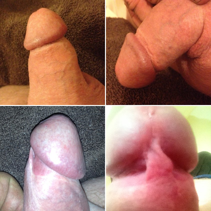 Found site Foreskin so tight masturbation is impossible
